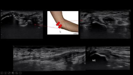 周围神经损伤超声评估 Neuromusculoskeletal Ultrasound for Peripheral Nerve