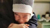 河南男童遭老师揪头发致头骨分离 母亲发声