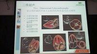 心脏超声诊断基础及临床应用姜颖2011协和_标清