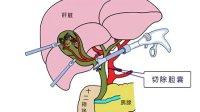 腹腔镜专治复杂胆结石