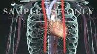 三维医学-冠状动脉搭桥术(CABG)