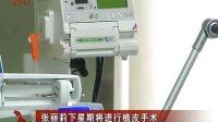 张丽莉下星期将进行植皮手术 120603 新闻联播