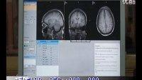 眼部MRI的常规扫描技术