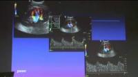 肾动脉狭窄