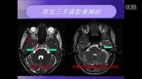 杨超三叉神经痛的快速诊断和简明治疗流程