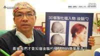 【Q&A】谢明吉医师 ∣ 3D客制化后脑勺整形
