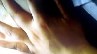 微肤康中药祛斑技术