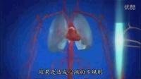 人体体系-无法修复的-心脏