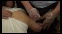 中医针灸-毫刃针松解疗法-手法操作示范