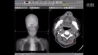 左侧颈总动脉闭塞