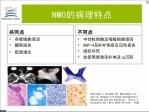 视神经脊髓炎NMO的诊断变迁