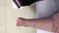 跟腱断裂微创缝合术后4个月功能1
