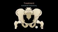 4.上截 髋臼周围截骨术3D动画演示 髋关节髋臼发育不良DDH 髋臼周围截骨术PA0 保髋治疗 畸形 髋关节置换