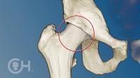 11.撞击综合征 髋臼周围截骨术3D动画演示 髋关节髋臼发育不良DDH 髋臼周围截骨术PA0 保髋治疗 畸形 髋关节置换