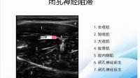 144超声引导技术在麻醉中的应用
