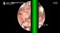 王素敏教授:宫腔镜妊娠胎物残留电切术-中国妇产科网郑引枝夏雪_高清