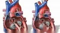 胎儿心脏发育 科普 fetal heart circulation