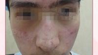 南京肤康皮肤研究所有效治疗痤疮