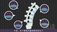 深读-腰椎间盘突出2:腰椎间盘就这样突出了