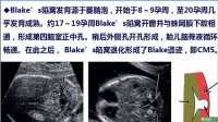 152讲-ISUOG胎儿神经系统解读