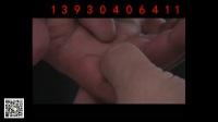 杜嵩独针-坐骨神经痛的治疗和演示