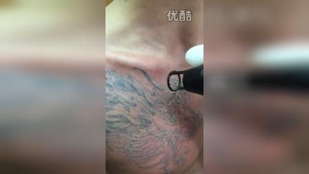 湖南老板洗胸部龙头纹身 昆明李医生专业洗纹身视频