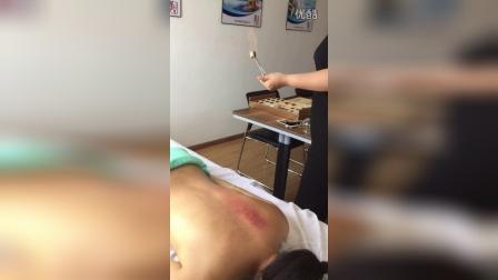蜂疗操作2