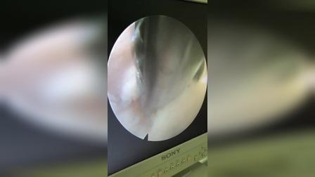椎间孔镜下组织的辨认
