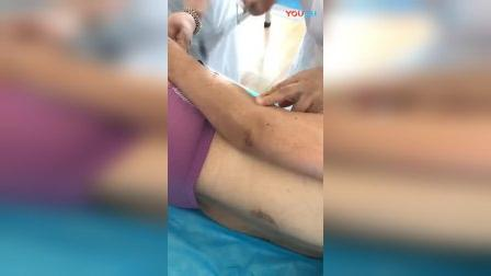 杨国军针灸现场视频3