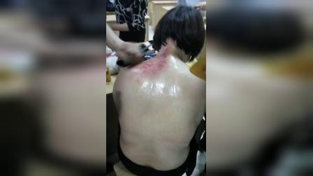 刮大椎穴肩井穴和背部