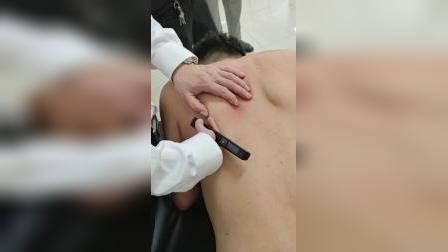 叶颖华肌筋膜松解术-肩胛下肌的治疗讲解