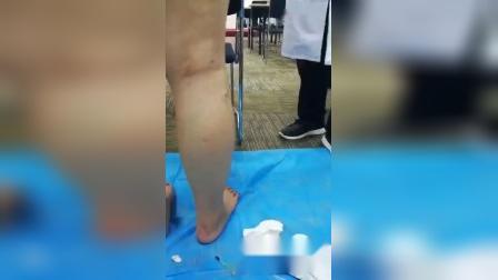 放血疗法治疗静脉曲张学习实操教学_标清