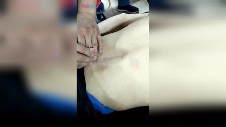 何强八部归宗术毫刃针治疗腰痛手法教学讲解_高清