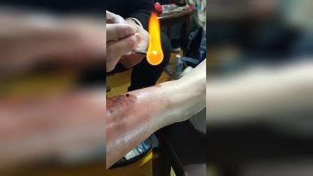 贺氏火针治疗烫伤后排淤血手法_高清
