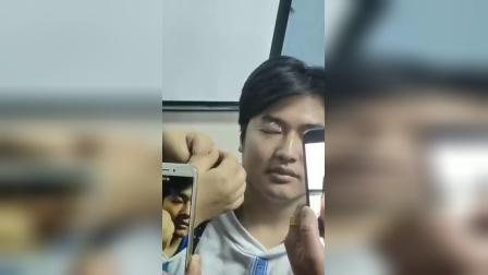 张秀春治疗眼睛疾病手法针法实操演示_标清