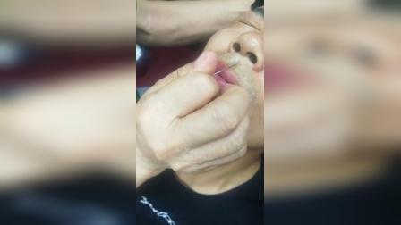 针灸治疗鼻炎手法立竿见影效果_高清
