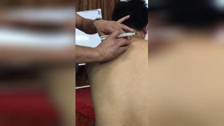 针灸治疗颈椎病心脏病乳腺增生部位区域教学_标清
