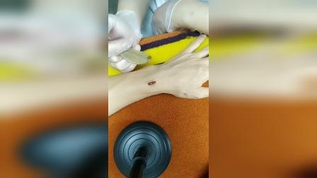 桑芭克拉凹陷疤痕修复操作教学2