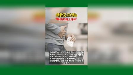 全球仅20余例,66岁衢州奶奶摊上这种罕见病