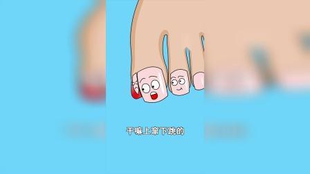搞笑动漫:指甲盖不听使唤了,又发炎了