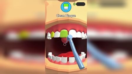 小游戏:帮大叔洗牙吧