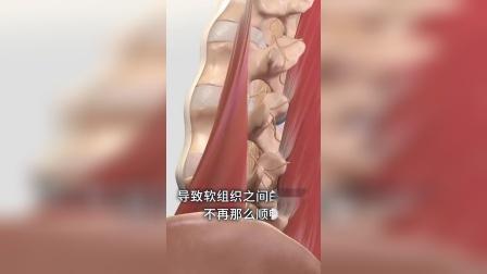 脖子为什么会出现这种情况?