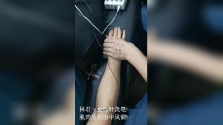 林君·董氏针灸-电针手臂肌肉放松治疗中风偏瘫