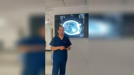 脑溢血患者的CT光片详解-磐真堂中医推拿培训 《2》
